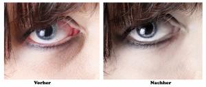 Augen Retusche Vorher-Nachher Auch wenn Sie erkältet sind oder schlaflose Nacht hinter sich haben, bin ich für Sie da