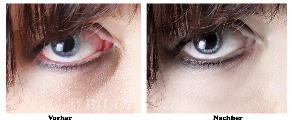Augen Professionelle Bildretusche Vorher - Nachher ©Bilifotos.ch
