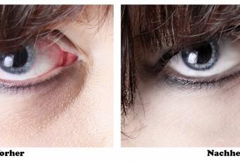 Augen Retusche Vorher - Nachher ©Bilifotos.ch